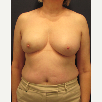 55-64 year old woman treated with Breast Reconstruction after 3691071