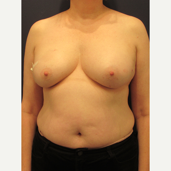 55-64 year old woman treated with Breast Reconstruction before 3691071