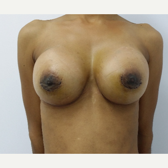 25-34 year old woman treated with breast augmentation after 3181536