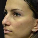 35 year old woman treated with Nose Surgery