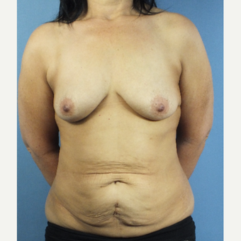 55-64 year old woman treated with Mommy Makeover before 3123676