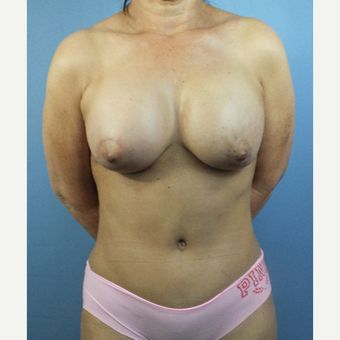55-64 year old woman treated with Mommy Makeover after 3123676