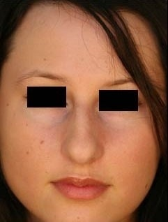 Female Primary Rhinoplasty  959978