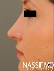 Female Primary Rhinoplasty  after 959978