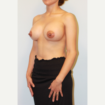 25-34 year old woman treated with Breast Implants after 3026791
