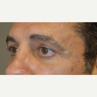 Middle age man, underwent lower blepharoplasty, upper blepharoplasty, and eyelid ptosis surgery.