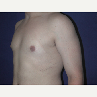 25-34 year old man treated with Male Breast Reduction after 3727293