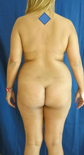 Laser lipolysis of a 38 years old female. before 1494740