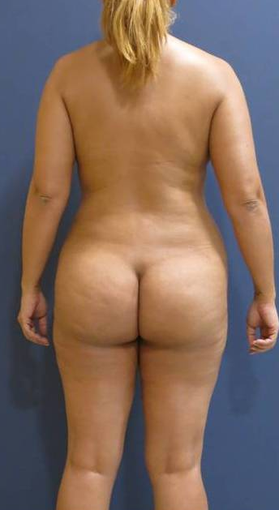 Laser lipolysis of a 38 years old female. after 1494740