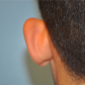 17 or under year old man treated with Ear Surgery before 3669421