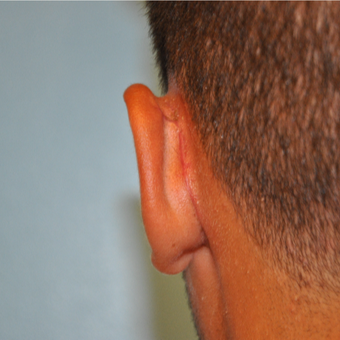 17 or under year old man treated with Ear Surgery after 3669421