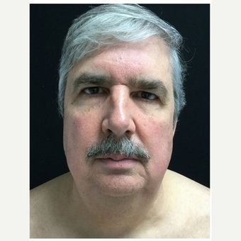 55-64 year old man treated with Facelift after 3219489