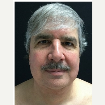 55-64 year old man treated with Facelift before 3219489