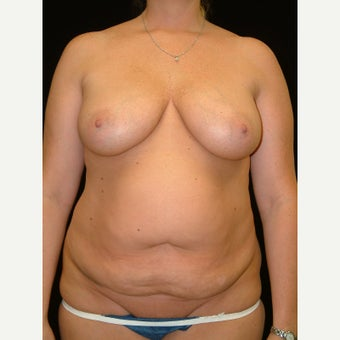 35-44 year old woman treated with Mommy Makeover Fully Tummy Tuck and  Vertical Breast Lift before 3141763