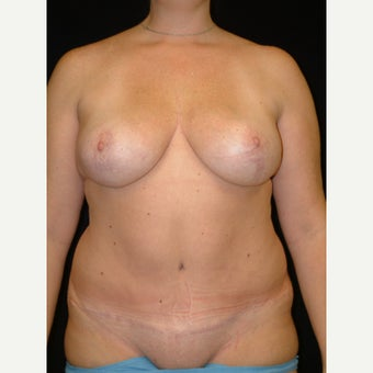35-44 year old woman treated with Mommy Makeover Fully Tummy Tuck and  Vertical Breast Lift after 3141763