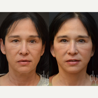 Facelift, Upper Eye Blepharoplasty before 3100704