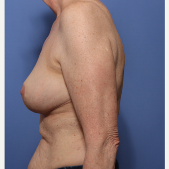 55-64 year old woman treated with Breast Reduction after 3506003