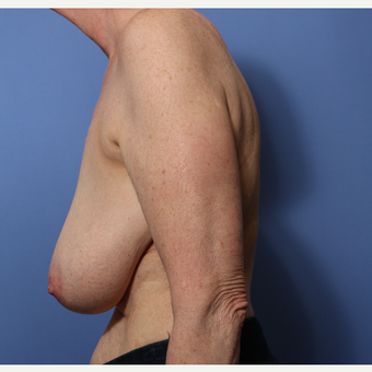 55-64 year old woman treated with Breast Reduction before 3506003
