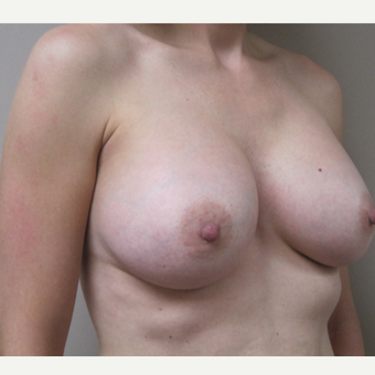 Breast Augmentation after 3605333