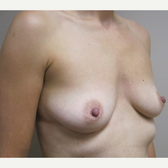 Breast Augmentation before 3605333