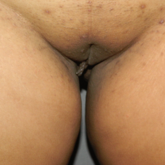 25-34 year old woman treated with Labiaplasty before 3158482