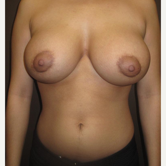 18-24 year old woman treated with Breast Augmentation after 3320987