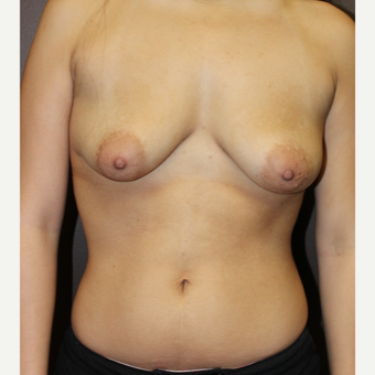 18-24 year old woman treated with Breast Augmentation before 3320987