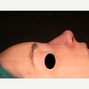 25-34 year old woman treated with Rhinoplasty after 3211322