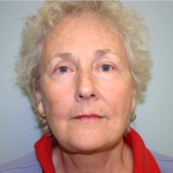70 year old woman treated with Facelift after 3667710