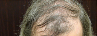 NeoGraft hair transplant before 562047