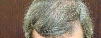 NeoGraft hair transplant after 562047