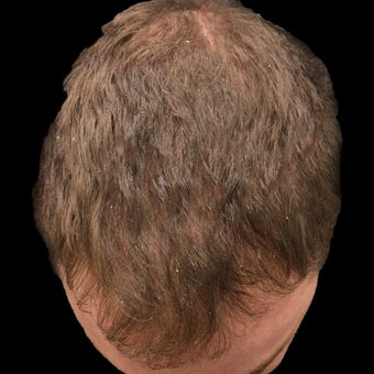 25-34 year old man treated with Hair Loss Treatment before 1736158