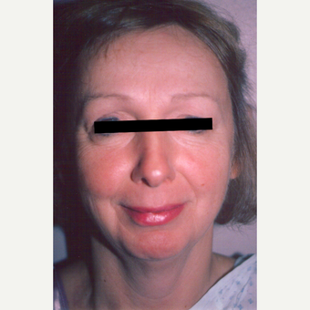 45-54 year old woman treated with Facelift before 3538942