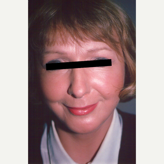 45-54 year old woman treated with Facelift after 3538942