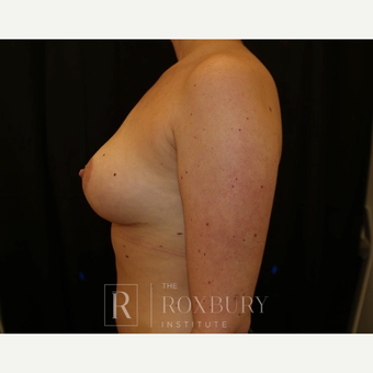 25-34 year old woman treated with Breast Lift after 3844326