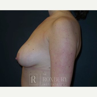 25-34 year old woman treated with Breast Lift before 3844326