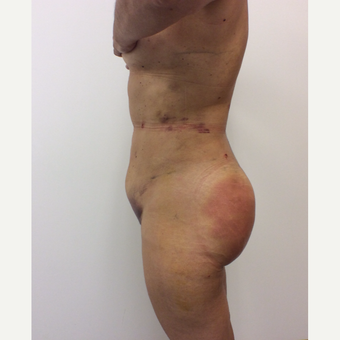 35-44 year old woman treated with Fat Transfer after 3590477