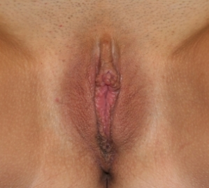 Labiaplasty after 935004
