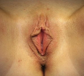 Labiaplasty before 935004