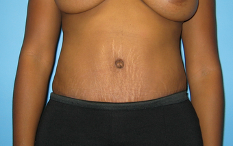 BeverlyHills Tummy Tuck after 659625