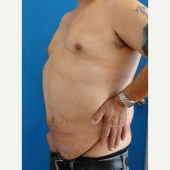 35-44 year old man treated with Panniculectomy 1803001