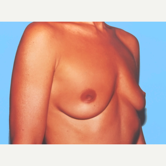 Breast Augmentation before 3732532