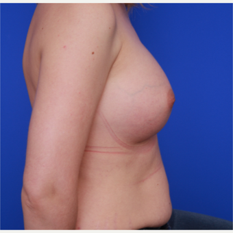 32-year old woman treated with Breast Implants after 3109227