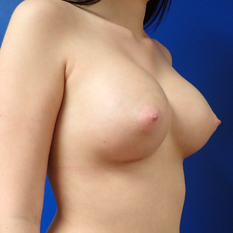 18-24 year old woman treated with Breast Implants after 2824144