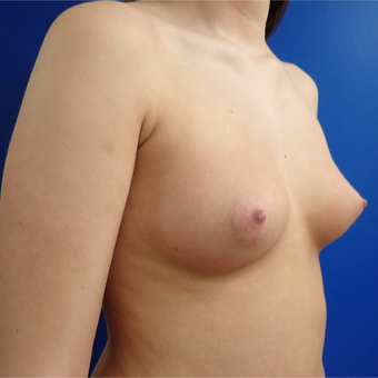 18-24 year old woman treated with Breast Implants before 2824144