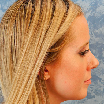 Rhinoplasty after 3124809