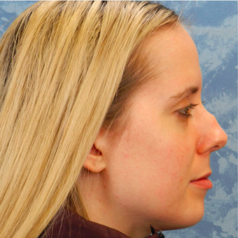Rhinoplasty before 3124809