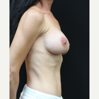 42 year old woman treated with Breast Implant Revision before 3070945