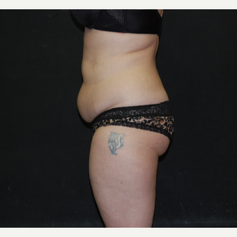 35-44 year old woman treated with Tummy Tuck before 3030837