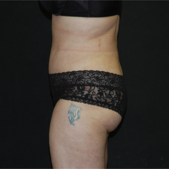 35-44 year old woman treated with Tummy Tuck after 3030837